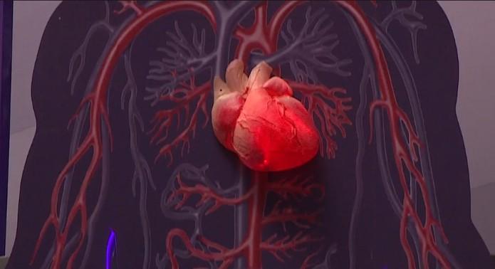 Infarto é a doença do coração que mais mata em Parauapebas