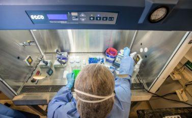 Sespa confirma o segundo caso de Covid-19 no Pará